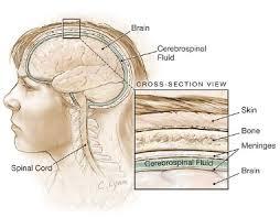 Obat Penyakit Radang Selaput Otak