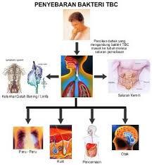 Obat Penyakit Tuberculosis TBC