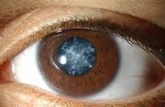 Obat Herbal Katarak Mata