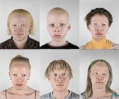 Cara Mengobati Penyakit Albino