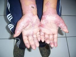 Pengobatan Tradisional Penyakit Lepra