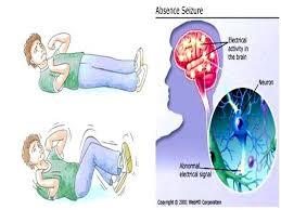 Pengobatan Epilepsi Secara Tradisional
