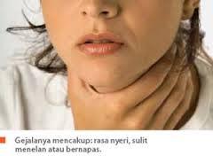 Obat Herbal Kista Tiroid