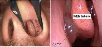 Obat Tradisional Untuk Menyembuhkan Polip Hidung