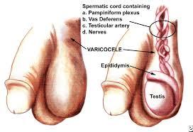 Obat Varikokel Tradisional Tanpa Operasi